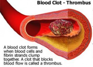 Blood Clotting