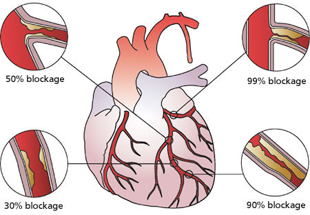 essay on coronary heart disease Read coronary artery disease free essay and over 88,000 other research documents coronary artery disease coronary artery disease by amber m lagard medical.