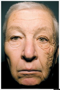 Bill McElligott, a delivery truck driver, has significant UV damage on the side of his face that was always nearest the window of his truck.