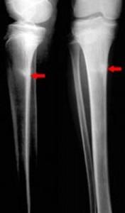 shin-splints-x-ray