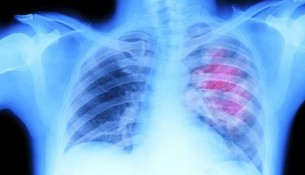 thoracic radiotherapy