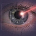 LASIK and PRK surgery